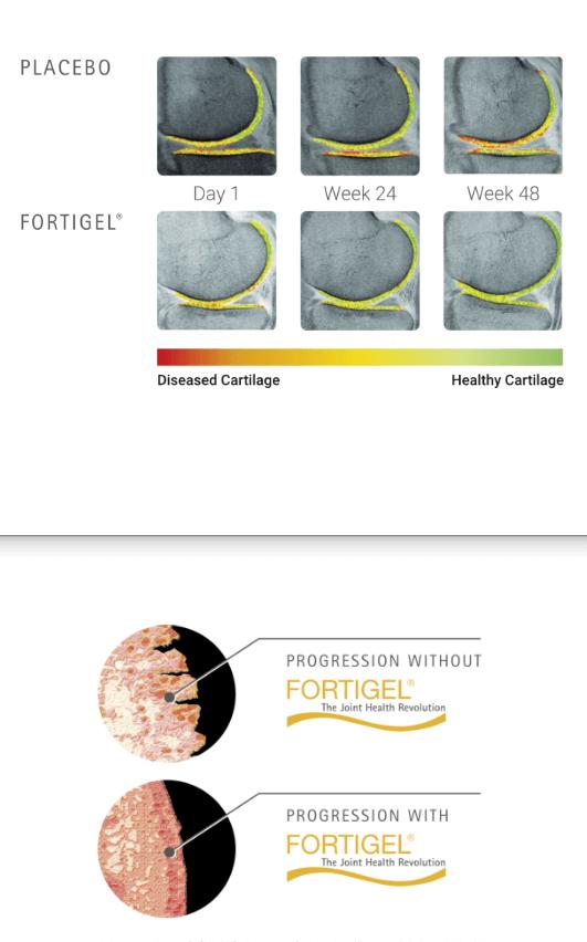 Multi Kolagén, FORTIGEL, zmeny v kĺbovej chrupavke